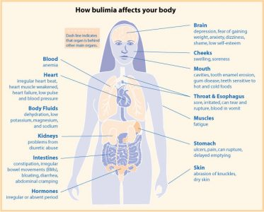 bulimia-effects-373x300 Bulimia